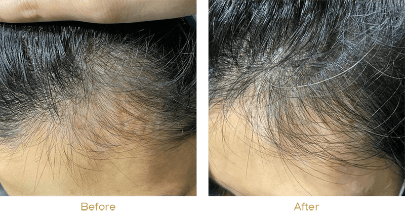 DNA Activator before after pic