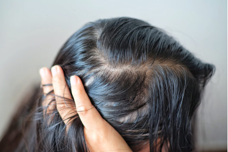 Hair and scalp problems in Singapore