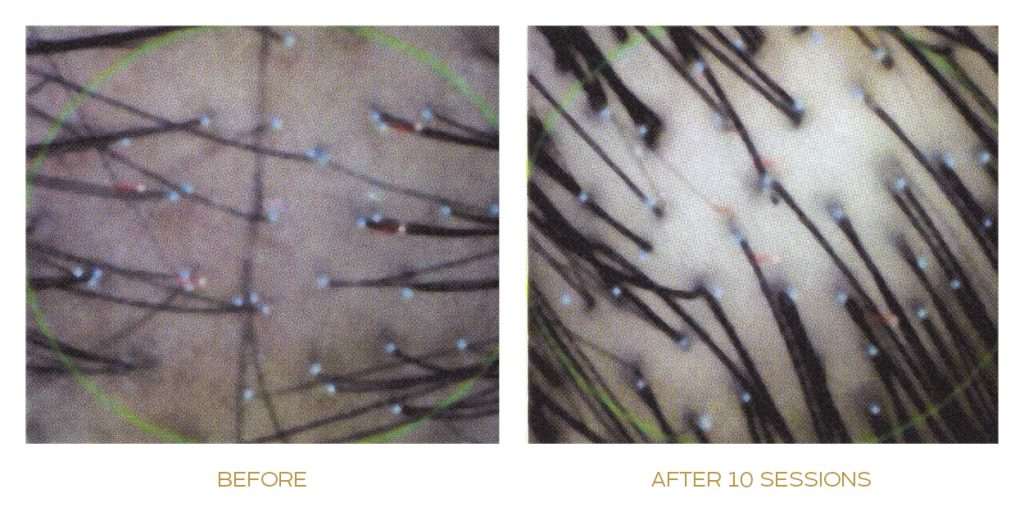 sep activator before after 1