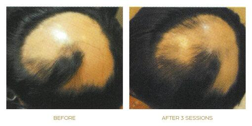sep activator before after 2