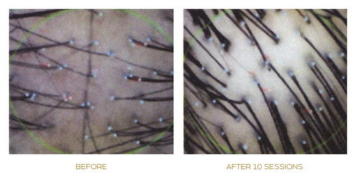 papilla haircare treatment before and after real photo