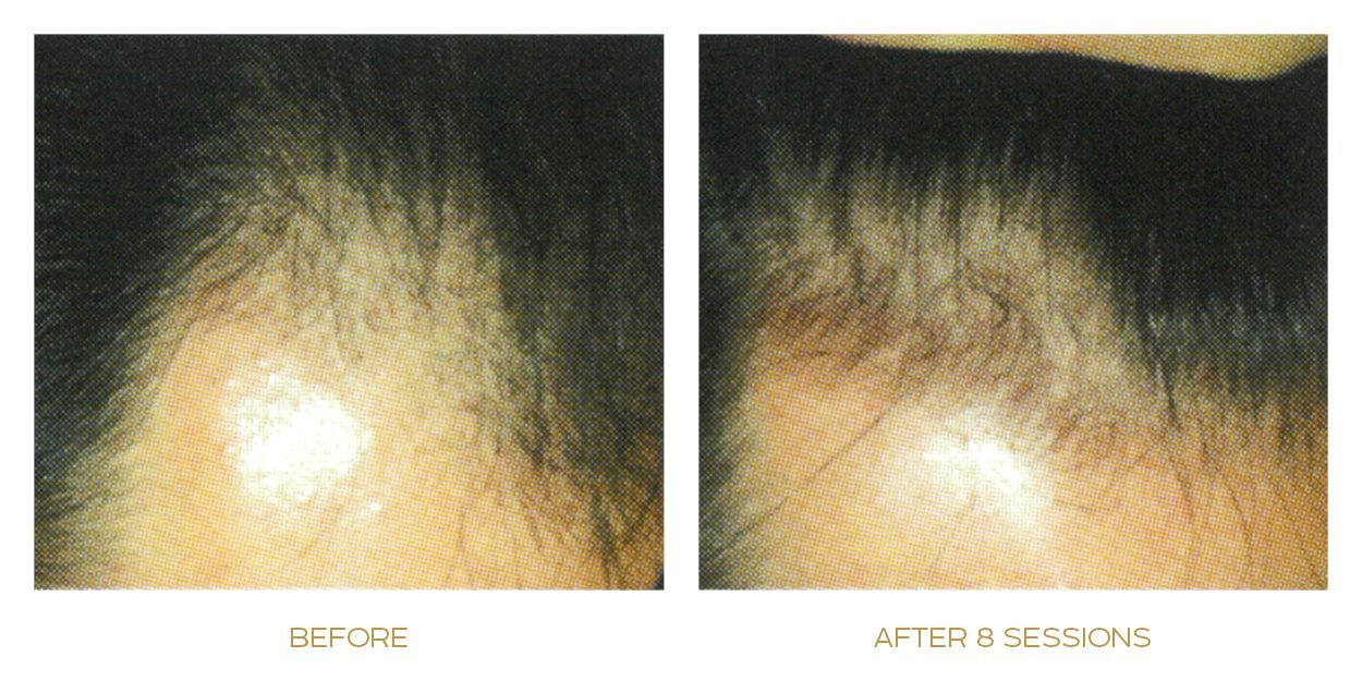 mesotherapy before after results