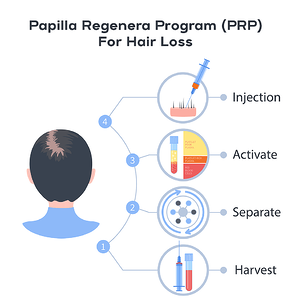 Papilla_PRP_injection