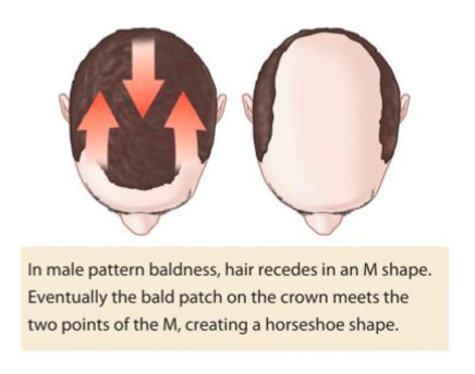 Male Pattern Baldness Horseshoe Shape illustration