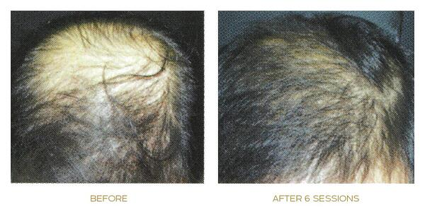 SEP activator before after result two