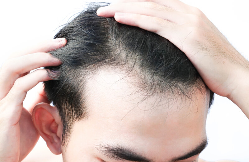 mild hair loss and hair thinning
