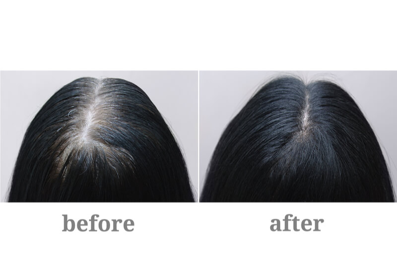 hair vs scalp treatment before after