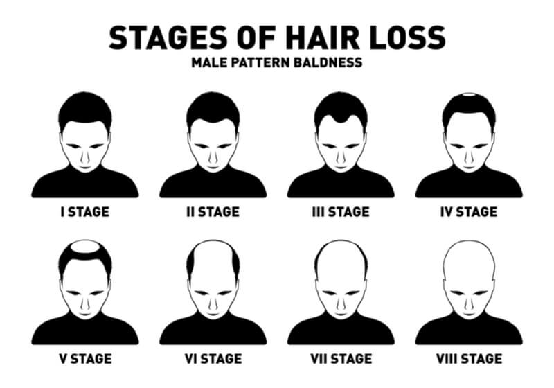 hamilton norwood stages of hair loss male pattern baldness scale