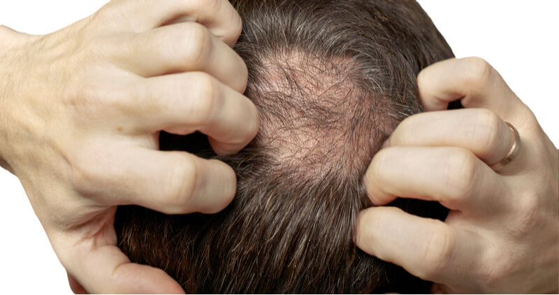 laser hair loss treatment for males