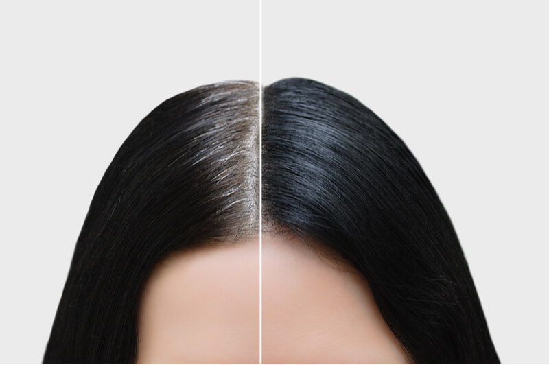 looking for the best scalp treatment