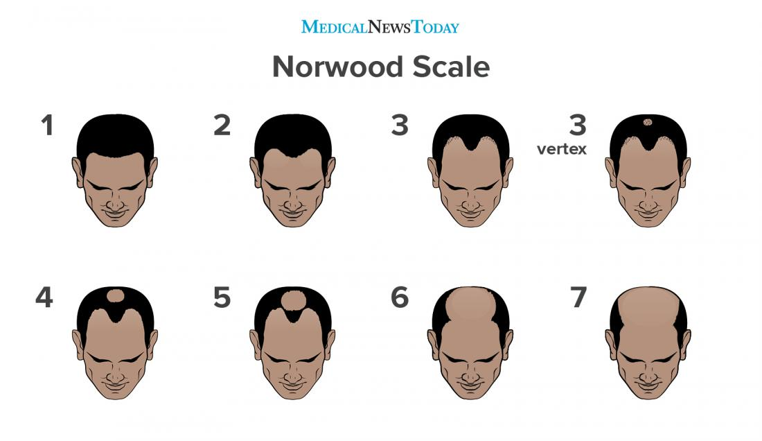 norwood scale male pattern baldness photo