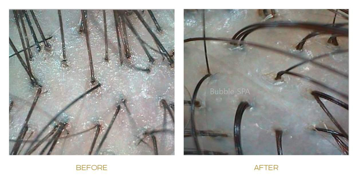 lux lllt scalp treatment before after 2