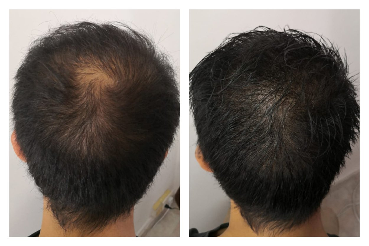 Scalp-Micro-Pigmentation-SMP-Before-and-after_1